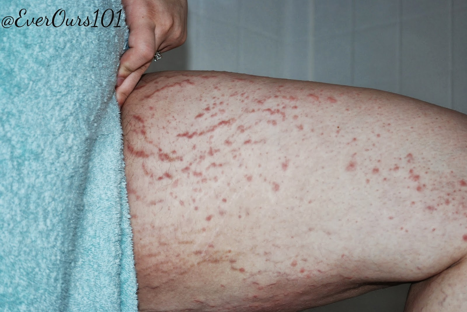 Rash Causes, Symptoms, Treatment - eMedicineHealth