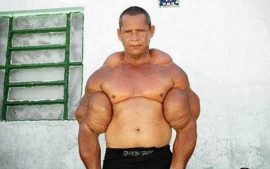 steroid bicep explode