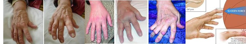 Swan Neck Deformity Treatment - Best Results