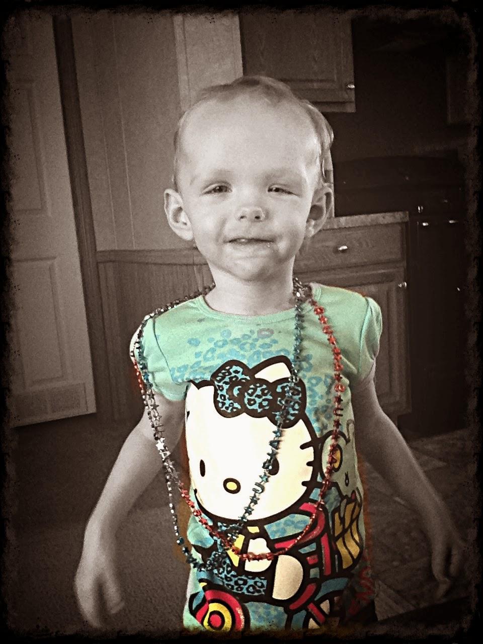 Фото детей с синдромом сотоса