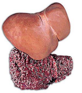 Image Pengobatan tumor hati ampuh stadium 1