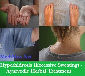 Natural Remedies For Hyperhidrosis Treatment