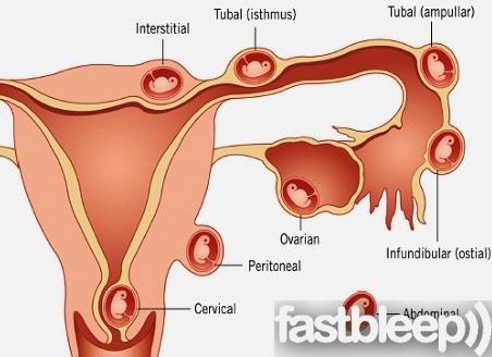 Ciencias de Joseleg: Anatomía de las trompas de Falopio II, embarazo ...
