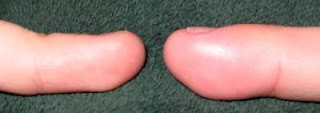 image of acute paronychia compared to normal finger