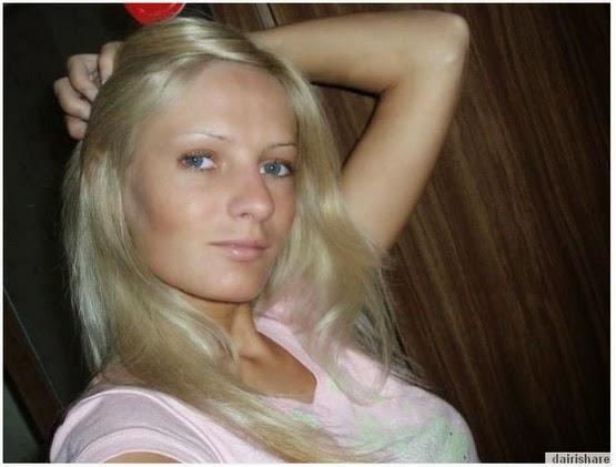 Gadis Cantik Kelihatan Mengerikan Selepas Pembedahan Plastik