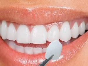 Carillas Dentales que son