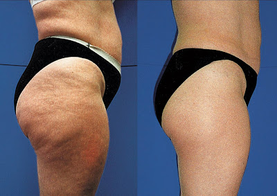 Causes of cellulite, anti cellulite treatments and solutions