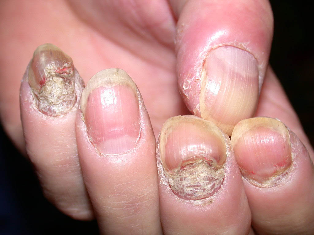 Permanent Psoriasis Relief: Battling Nail Psoriasis