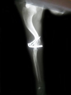 fractura humero con agujas en canino