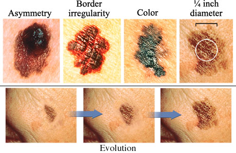 Image result for bahaya kanker kulit melanoma