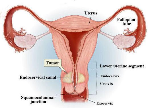 Image Kanker serviks pada wanita muda