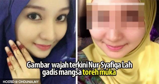 Gambar Wajah terkini  Nur Syafiqa Lah, gadis mangsa toreh muka