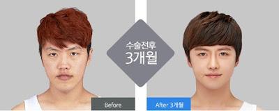 sebelum dan sesudah operasi plastik untuk pria di wonjin-1