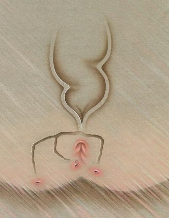 anal fistula in spanish