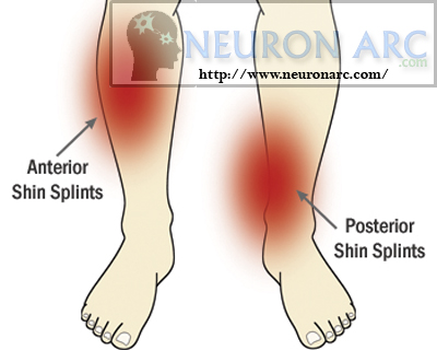 shin splints Anterior and lateral muscles of the leg: Clinical Anatomy,Pathology
