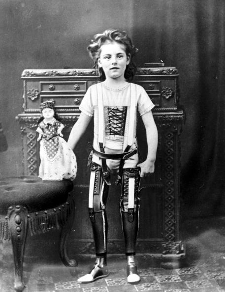 1890 Girl with Artificial Legs