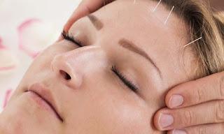 manfaat akupunktur kosmetik