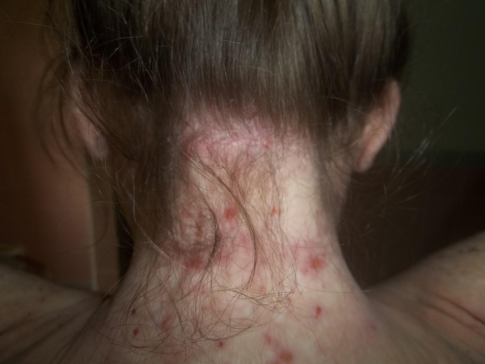 Answers to Bump on back of neck near hairline - DoctorBase