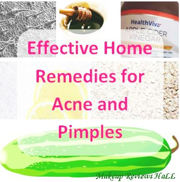 Effective Home Remedies for Acne & Pimples