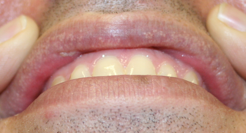 White Spots on Lips | MD-Health.com