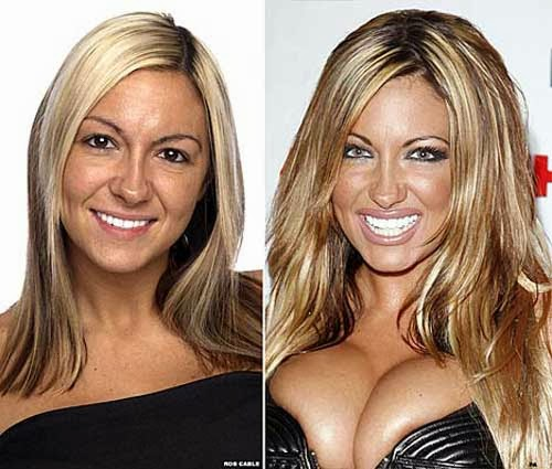 Jodie Marsh Before and After Plastic Surgery Photo