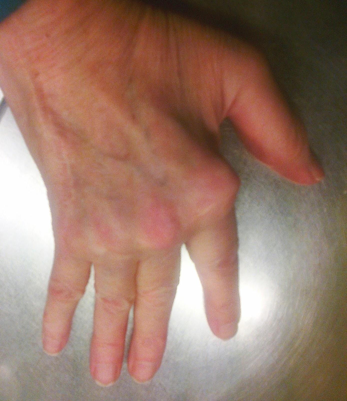 ont i knogarna på handen