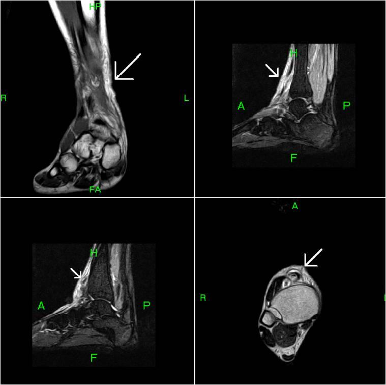 Tibialis anterior tendon mri