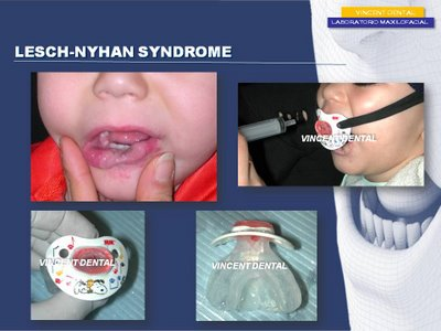 a paper on lesch nyhan disease Lesch nyhan syndrome lesch-nyhan syndrome (lns) is a serious genetic disorder characterized by hyperuricemia, dystonia, spasticity, choreoathetosis, speech impediments, kidney problems, varying degrees of cognitive impairment and, in particular, on the drive to self-harm that uncontrollable by the characteristic behavior is defined properly as.