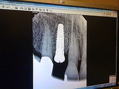 http://austindentalimplantcenter.com/dental-implants/