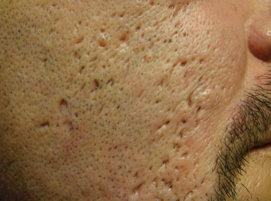 Comme blanchir la peau de la personne des taches de rousseur et les taches de pigment