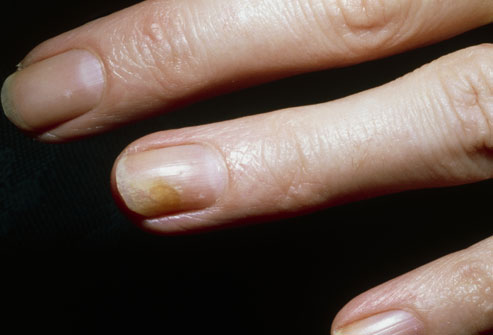Is The Most Common Fungal Infection Of Nails