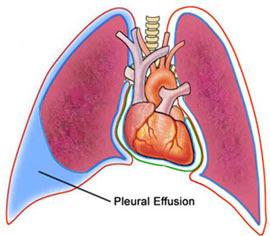 ineffective breathing pattern nanda