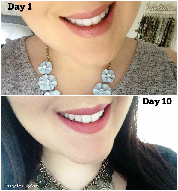 Blanx Teeth Whitening Before and After Results