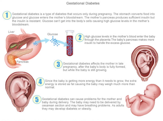 Who said sugar is sweet?: Type 1 vs Type 2 vs Gestational Diabetes