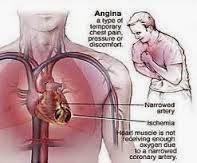 Obat Untuk Penyakit Jantung Lemah