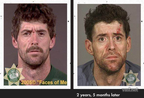 wajah ke 7 Wajah Para Pemakai Narkoba Sebelum Dan Sesudah Kecanduan