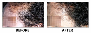 hair-transplantation-cochin