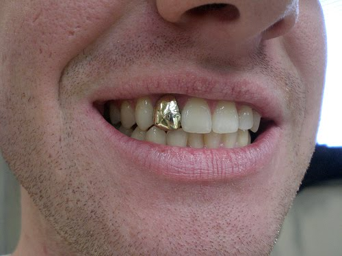 Gold teeth come in two...