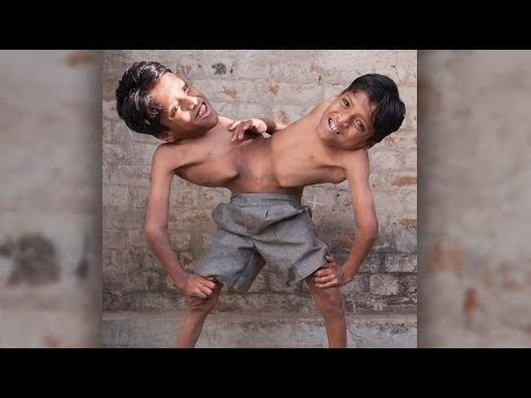 The Story Of These Conjoined Twins Will Teach You What Living In Harmony Means