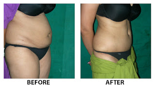 Tummy Tuck Surgery Cochin Kerala Before After