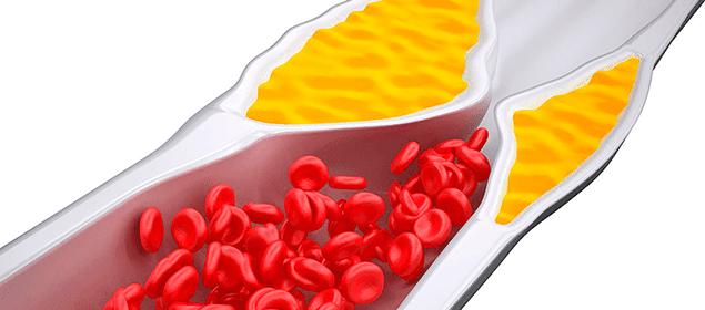 S ntomas que nos alertan de colesterol alto soluciones caseras remedios naturales y caseros - Alimentos a evitar con colesterol alto ...