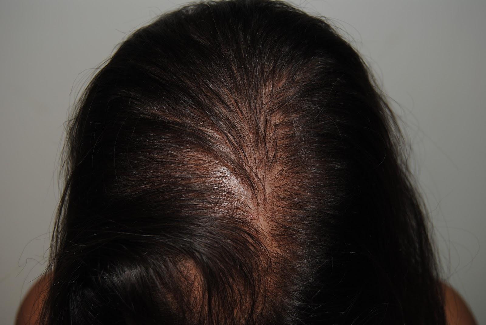 El aceite de bardana para los cabellos como usar para el crecimiento