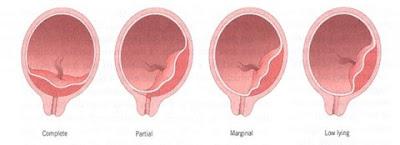 perdarahan antepartum plasenta previa