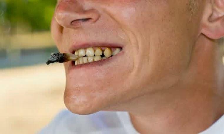 penyebab gigi berlubang Rokok secara tidak langsung akan menyebabkan gigi berlubang dan sakit gigi