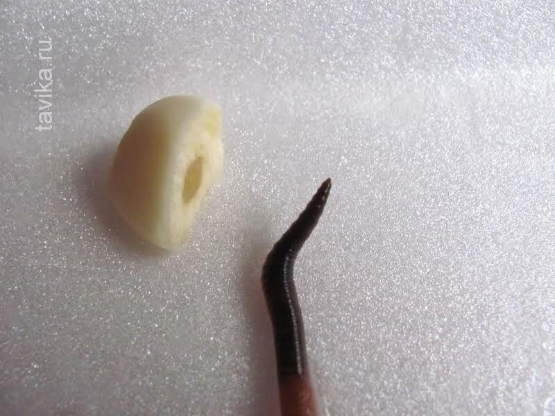 какие бывают черви в организме человека