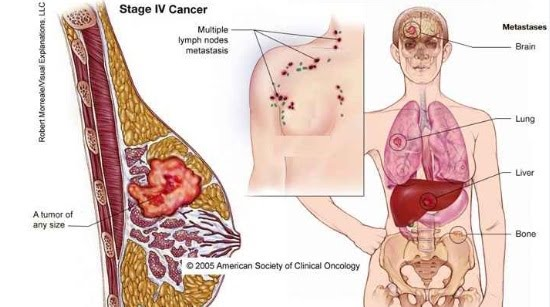Herbal breast cancer prevention herbs