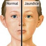 Nursing Care Plan for Jaundice