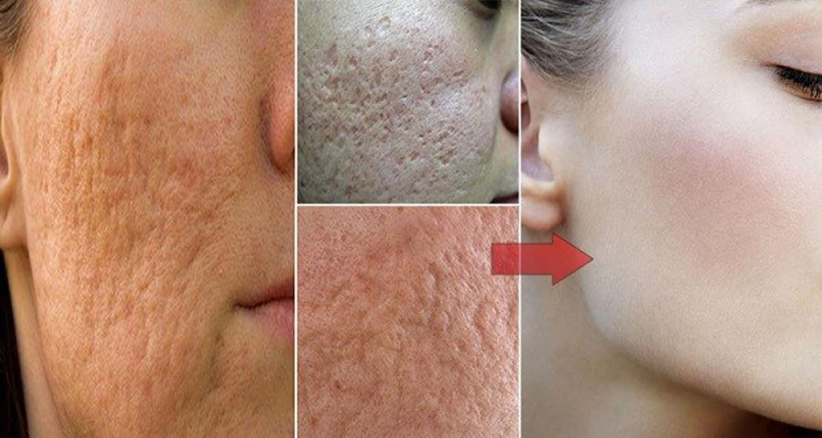 Как расширить поры на лице перед чисткой? 92