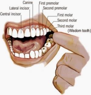 Cara Mengobati Sakit Gigi Berlubang Dengan Bahan Alami Artikel