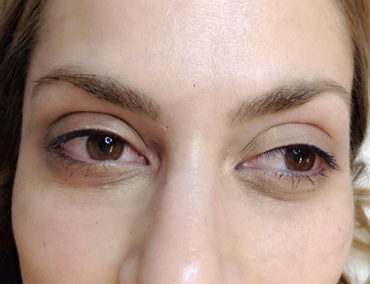 Que arreglar las bolsas en los ojos de botoksa